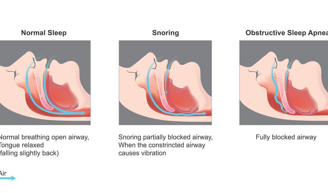 Vaihdevuosioireiden taustalla joskus uniapnea
